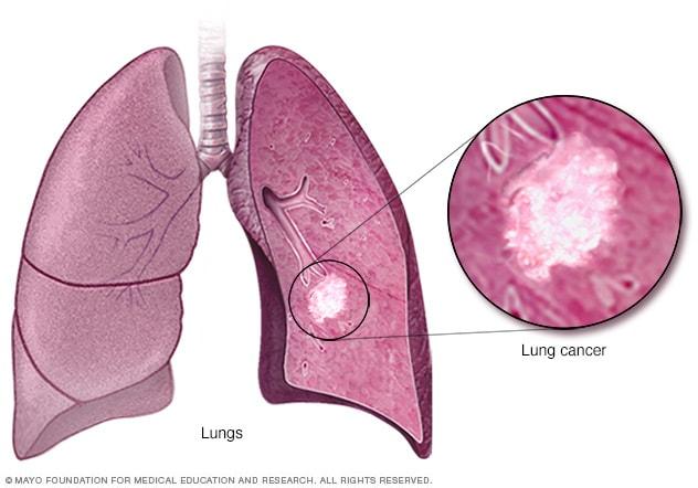 cancer pulmonar y de las vias respiratorias