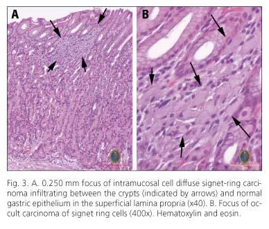 gastric cancer diffuse intestinal