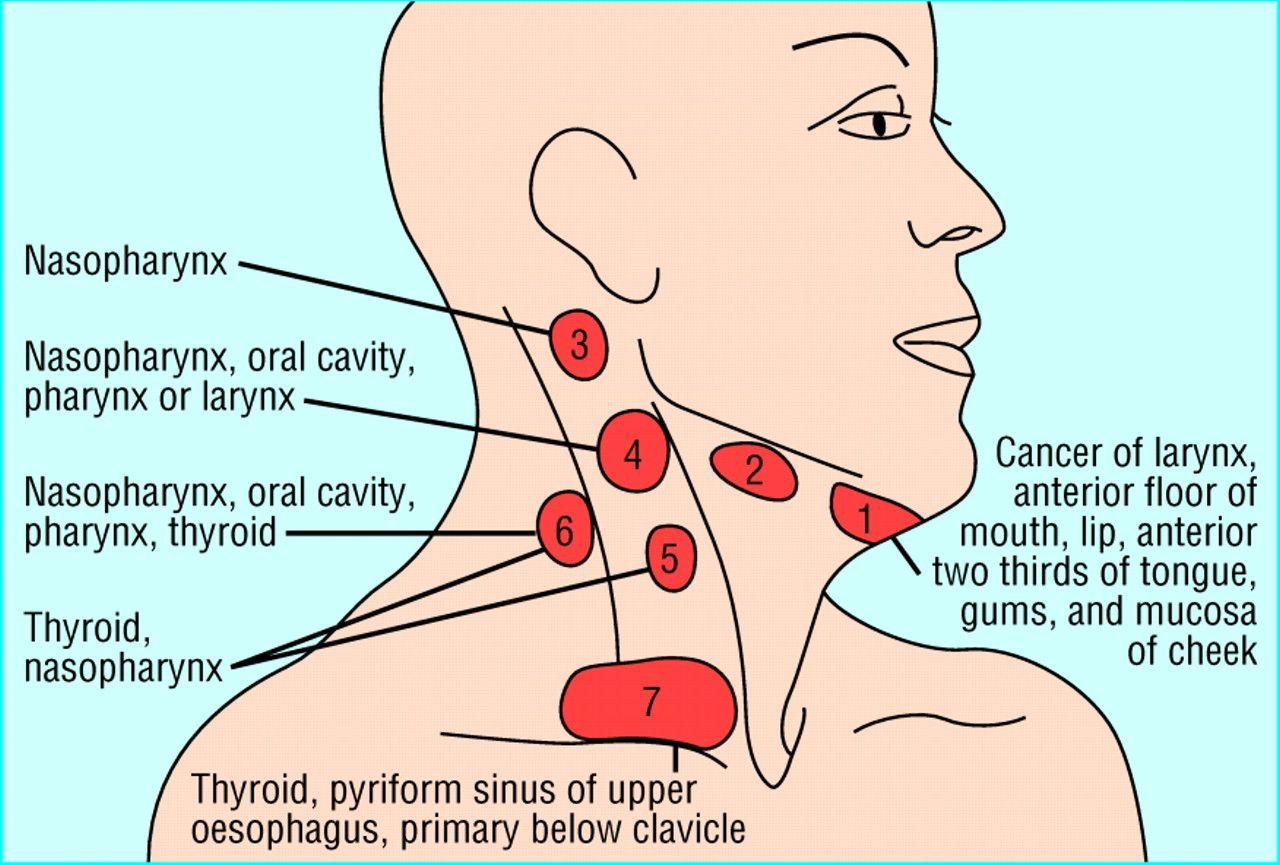 cancer of cervical lymph nodes