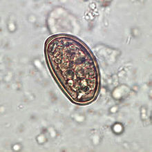 virus del papiloma humano cancer uterino