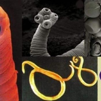 parazitii intestinali la om)