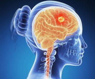 cancer malign pe creier)