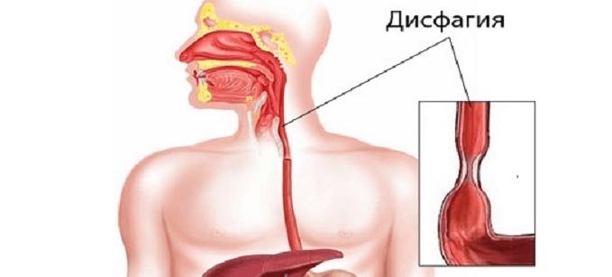 cancer esofagian alimentatie