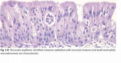 schneiderian papilloma exophytic type)