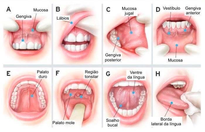 cancer laringe e faringe)