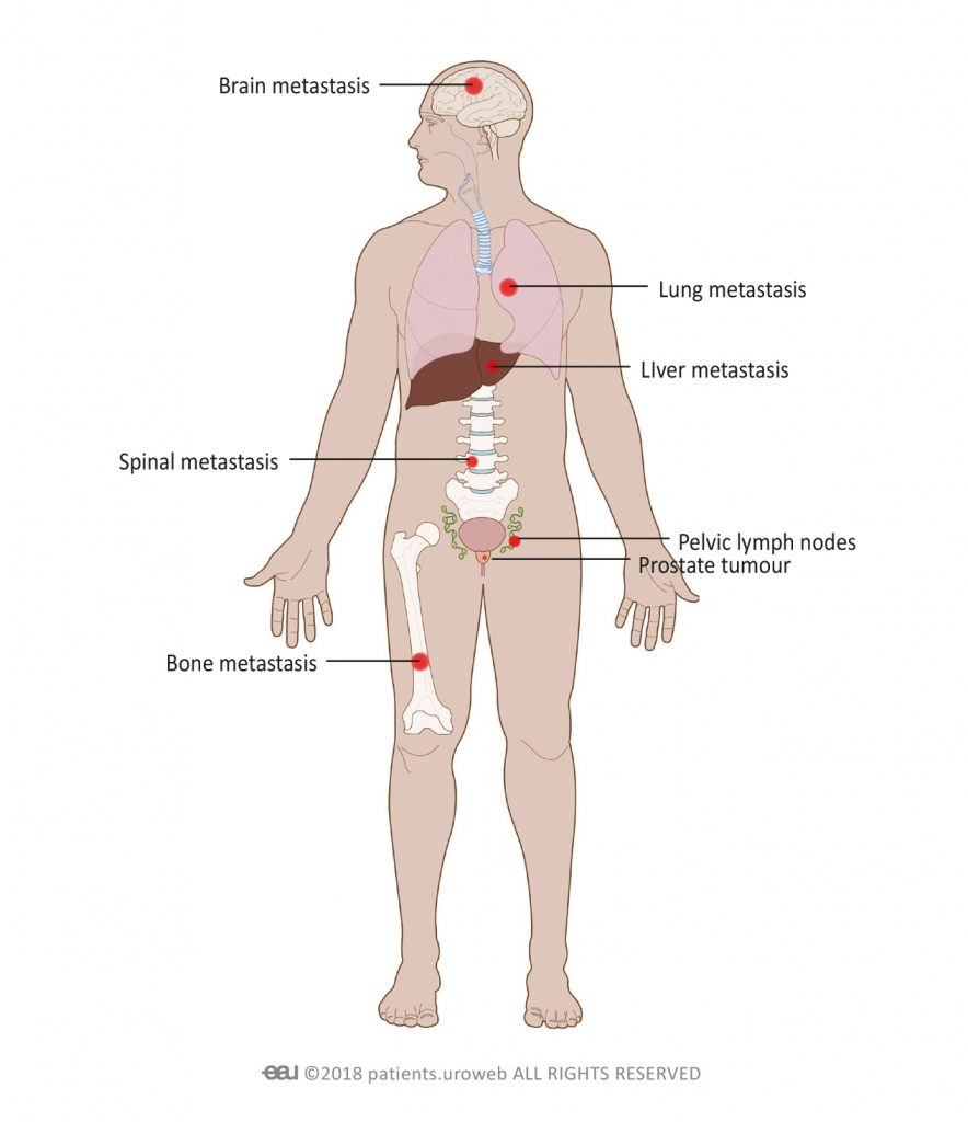 metastatic cancer from prostate