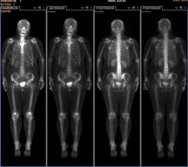 cancerul pulmonar cu metastaze osoase