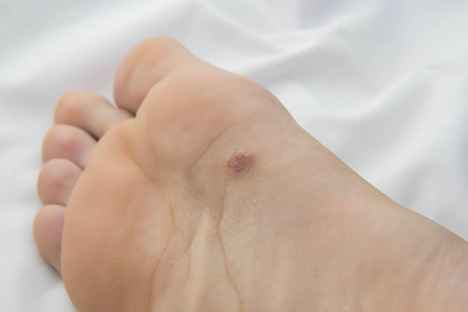 que es un papiloma en el pie