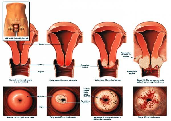 hpv infekce lecba