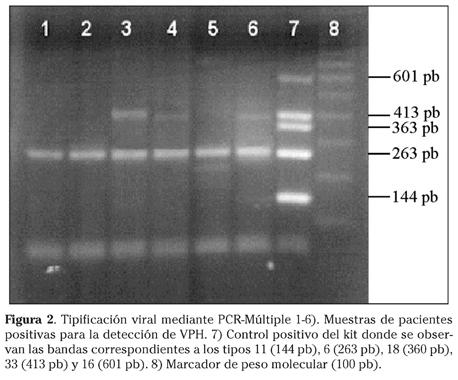 deteccion virus papiloma humano por pcr)
