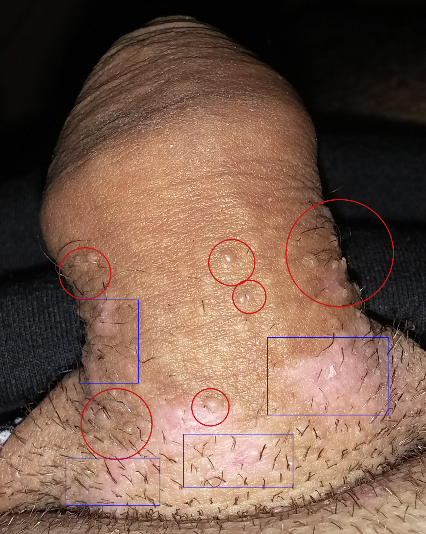 detecter un papillomavirus chez lhomme)