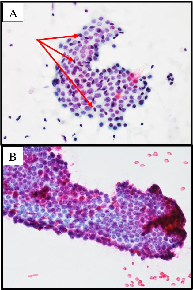 duct papilloma cytology)