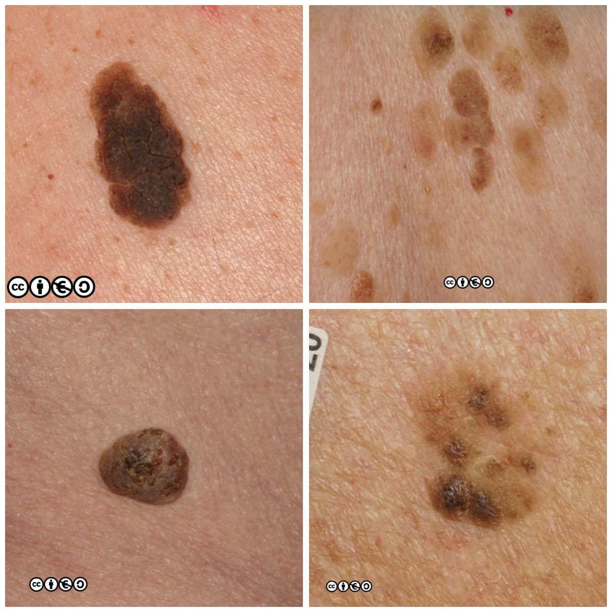 basal cell papilloma lesions)
