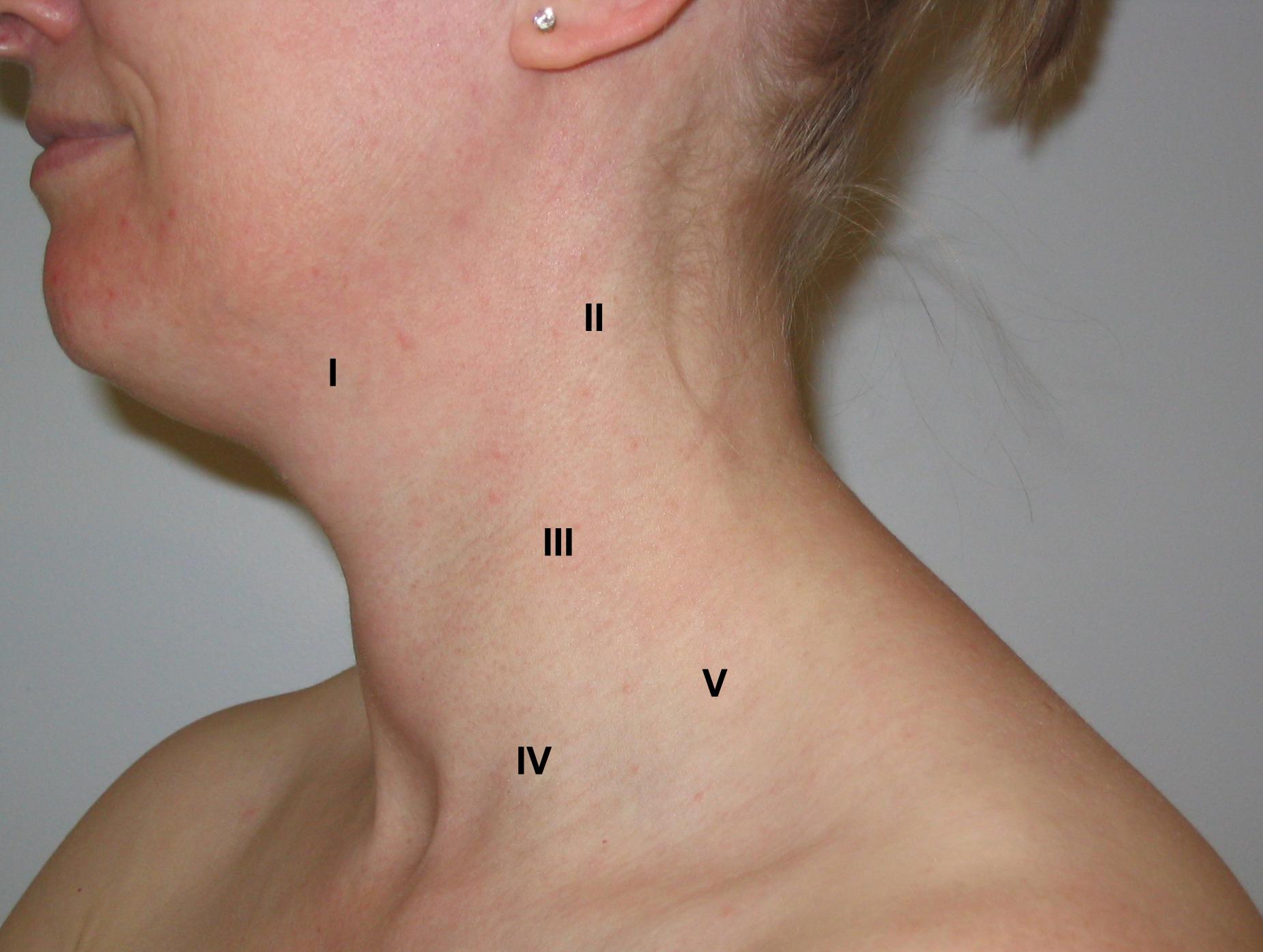 cancer cervical lymph node