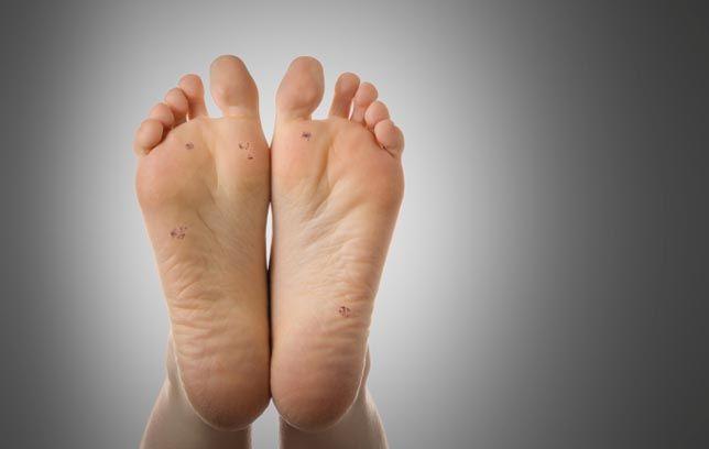 foot warts podiatrist or dermatologist)