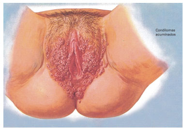 virus del papiloma humano que enfermedad es cancerul intestinului subtire