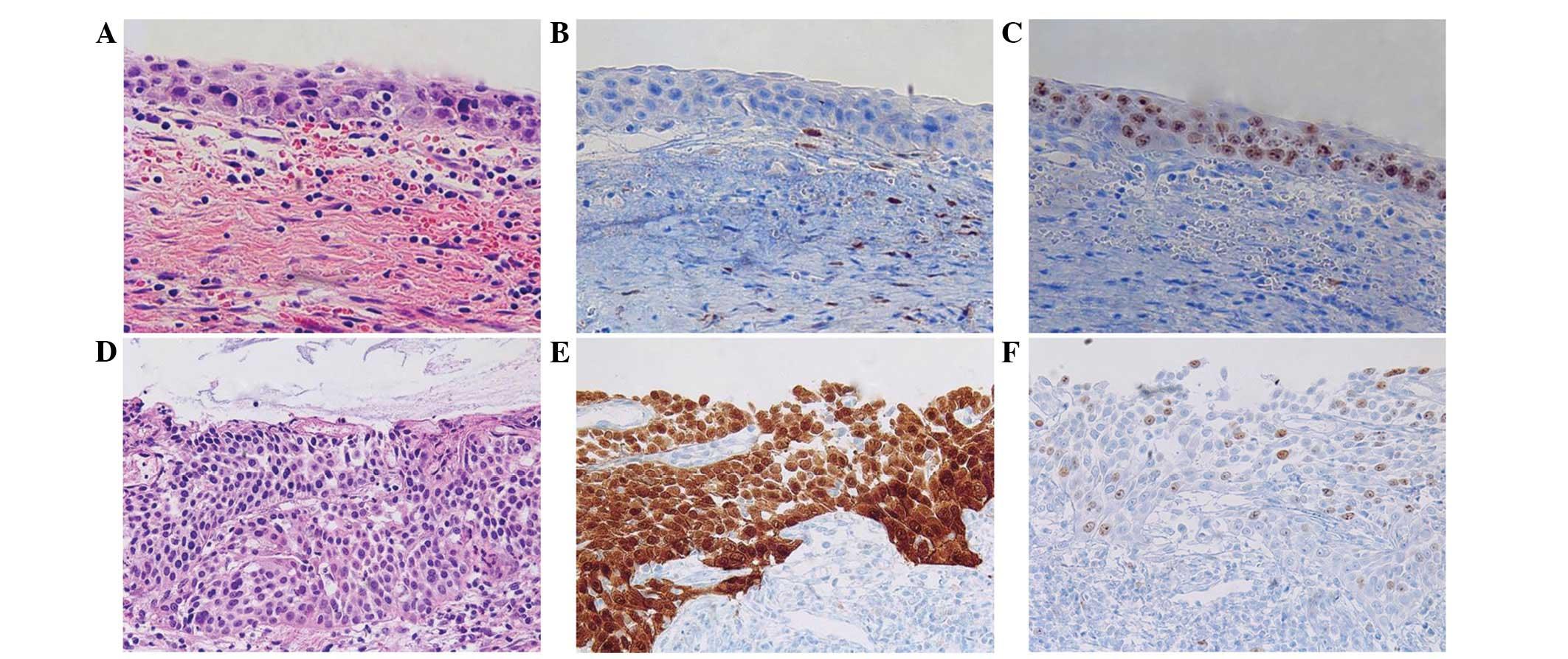 human papillomavirus p16 staining)