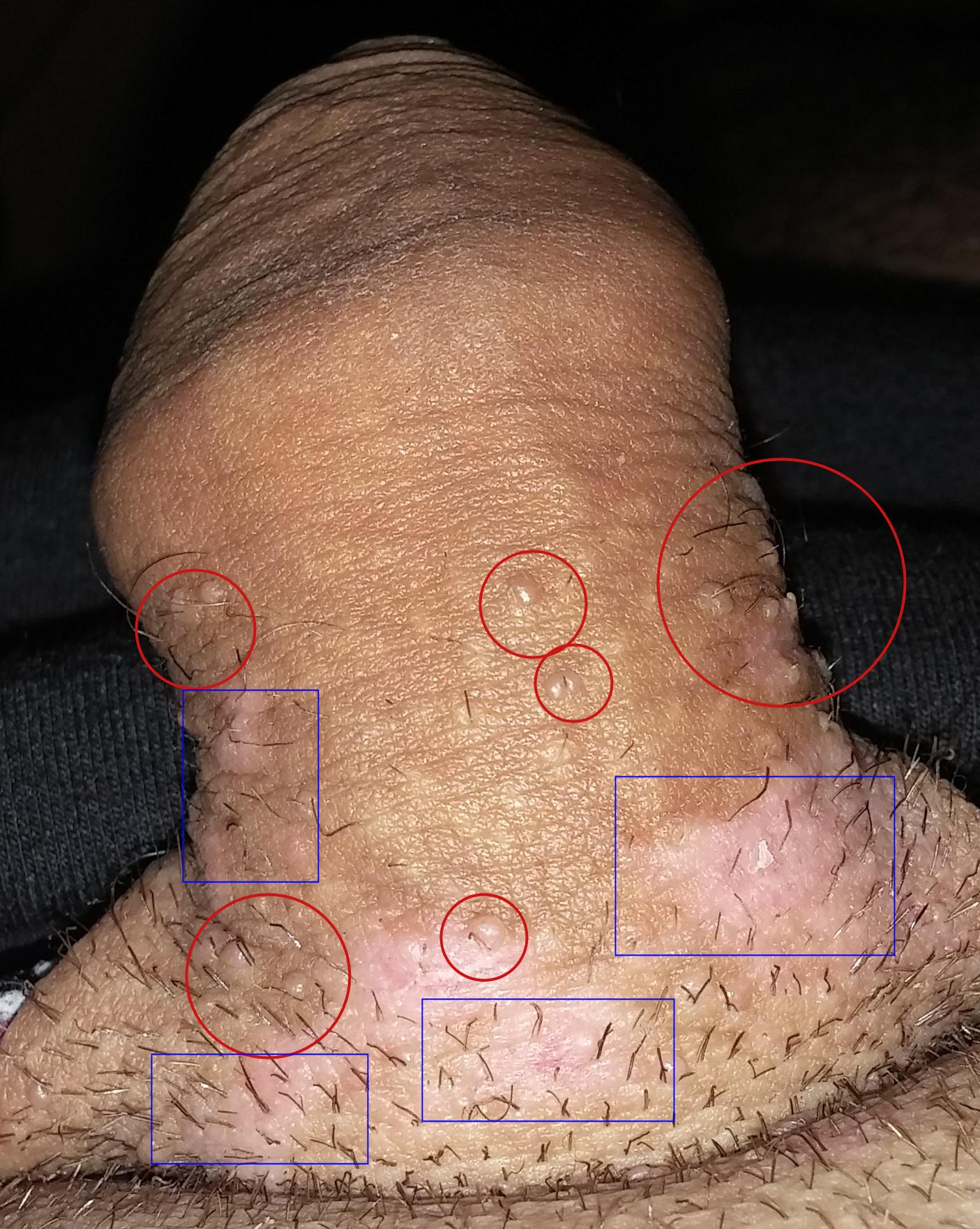 verrues papillomavirus)