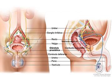 cancer prostata terapia hormonal