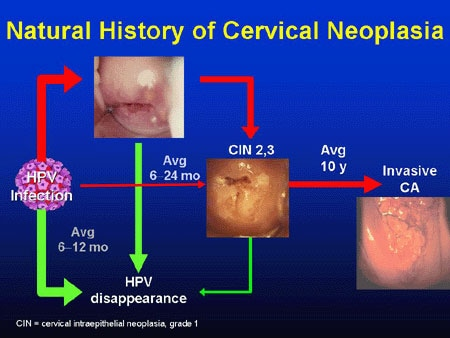 oncogenic papillomavirus infection)