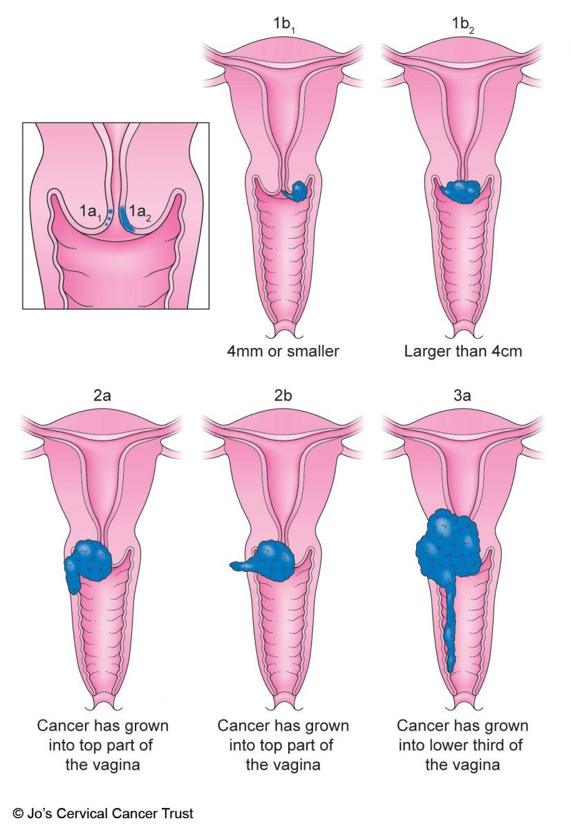 cervical cancer classification