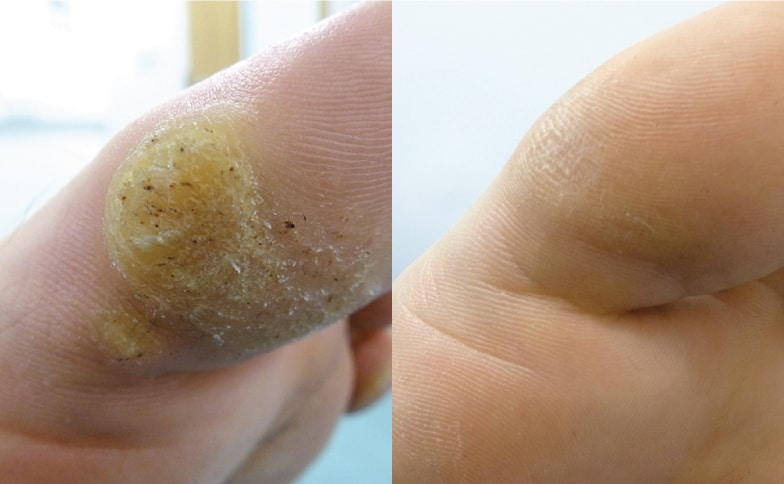 wart laser treatment cost