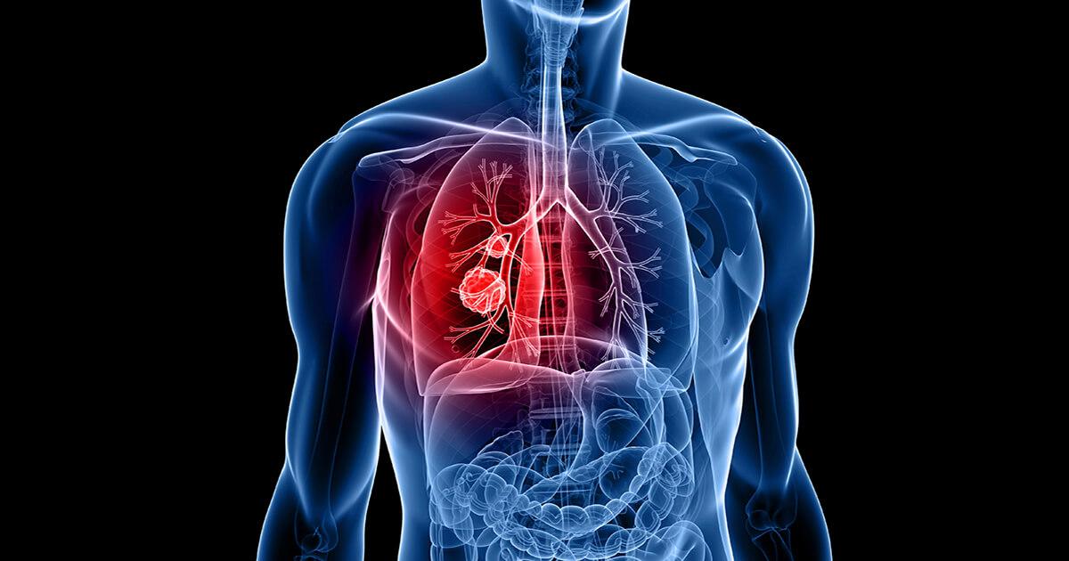 cancerul pulmonar stadiul 4)