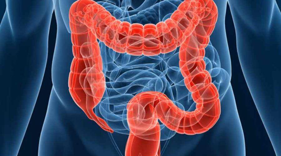 Factori de risc pentru cancerul de colon