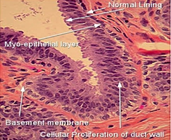 Simptome de hiperplazie ductală focală atipică