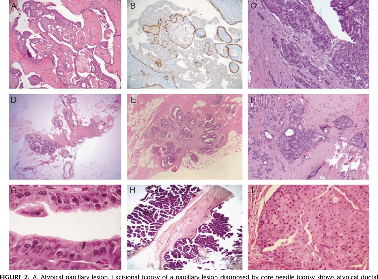papillary lesion with atypical ductal hyperplasia