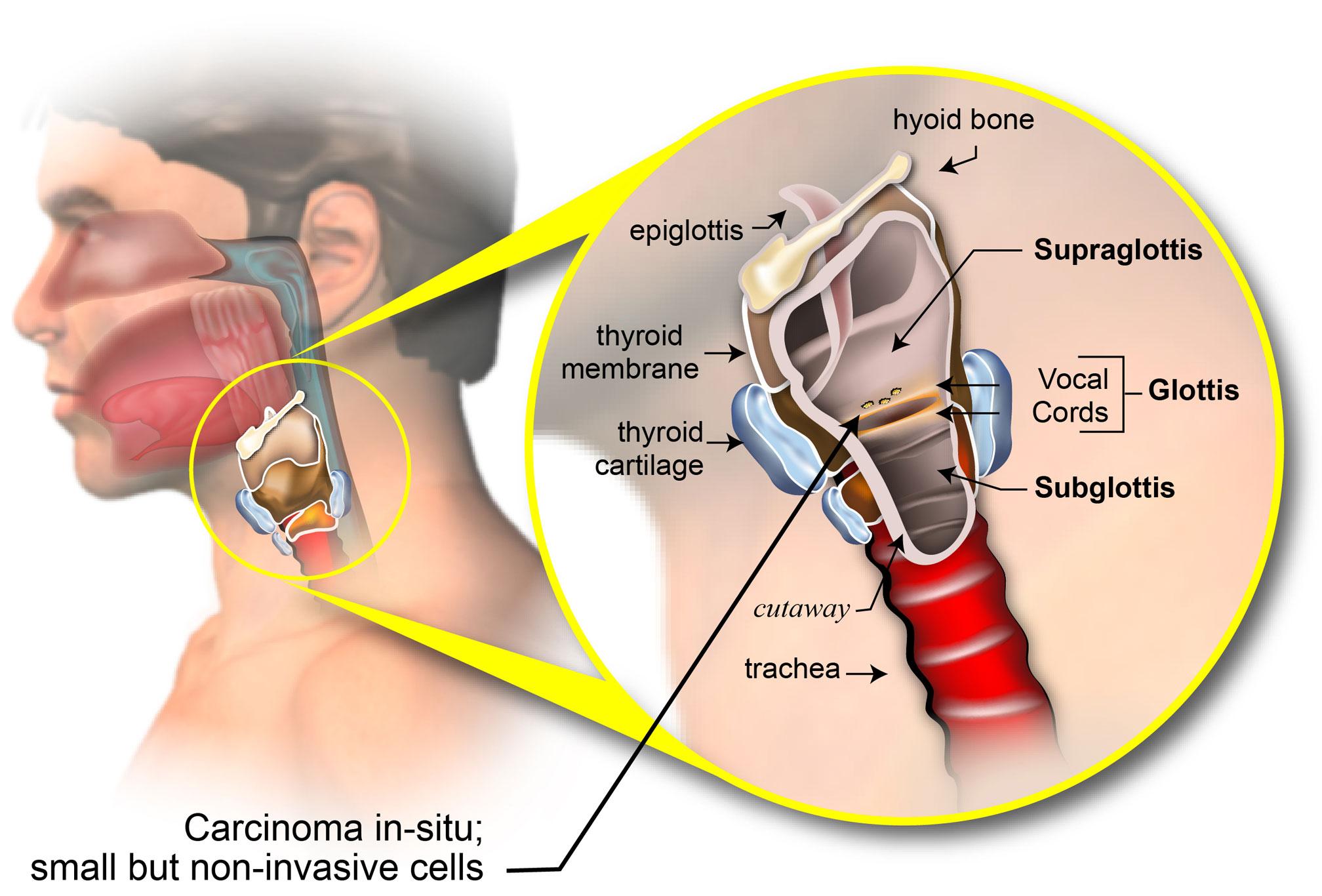 laryngeal papillomatosis lymph nodes
