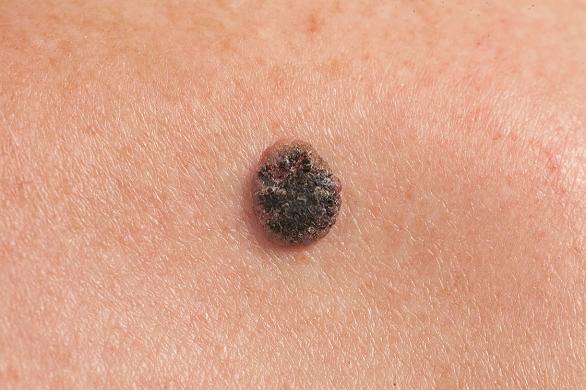 papillomavirus col de luterus traitement