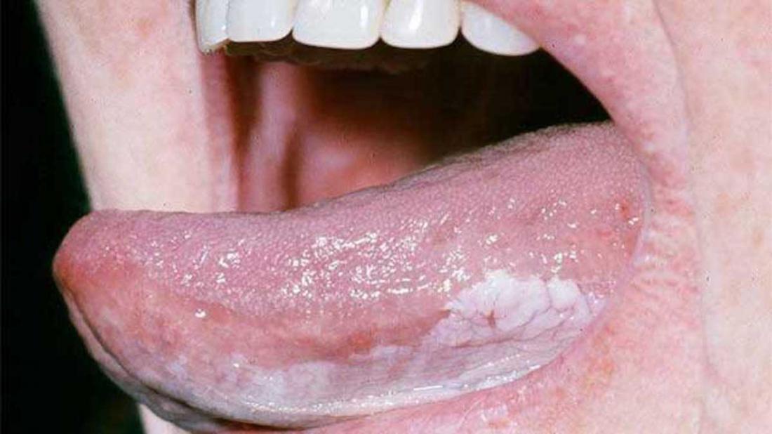 squamous papilloma tongue nhs)