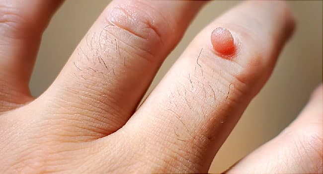 warts on inside skin