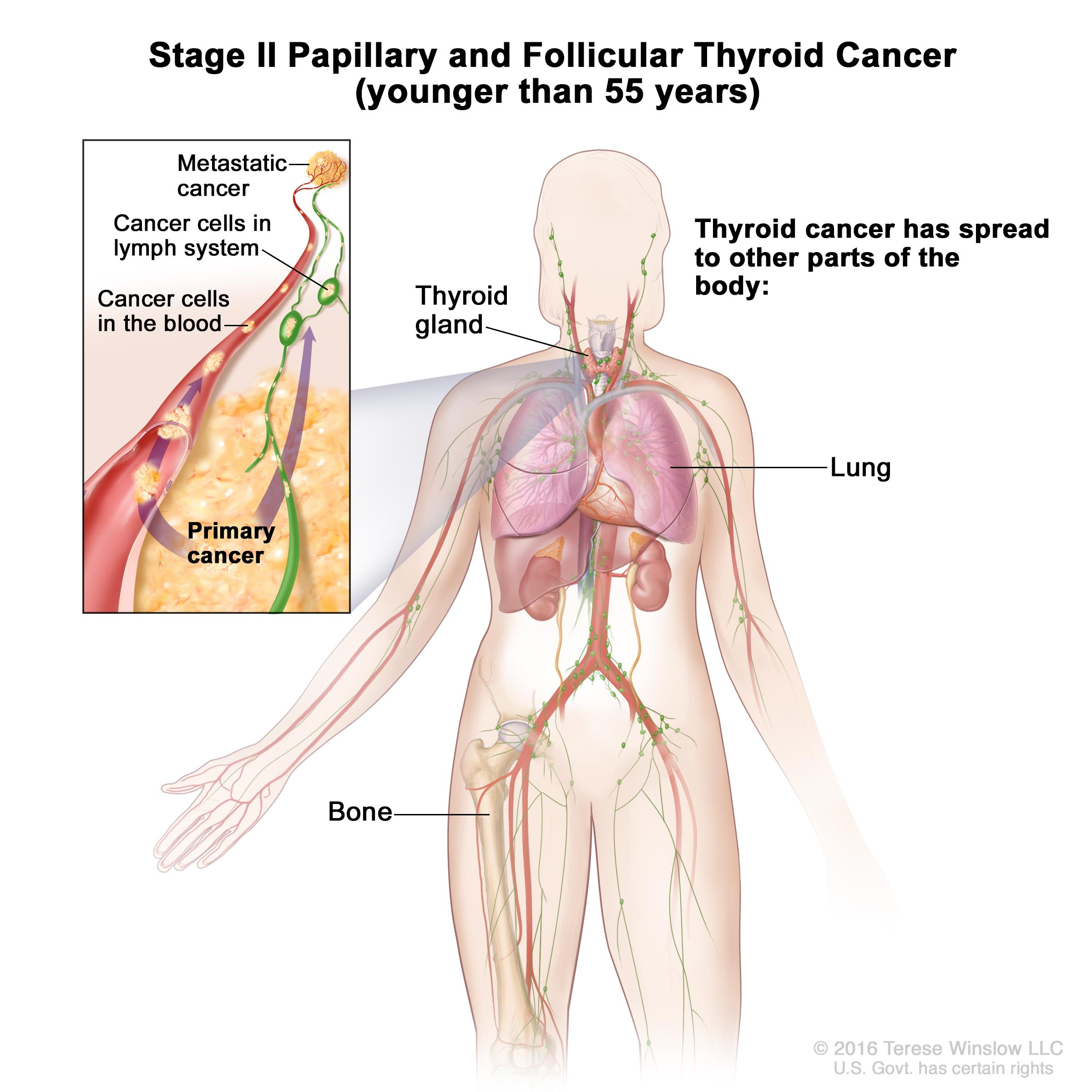 papillary thyroid cancer dying