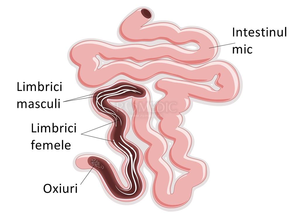 simptome limbrici)