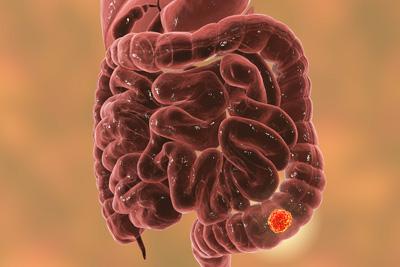 Cancer De Intestin Subtire