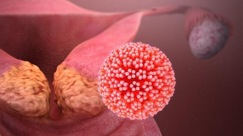 cervical cancer virus)