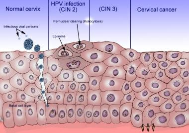 cervical cancer cin 2)
