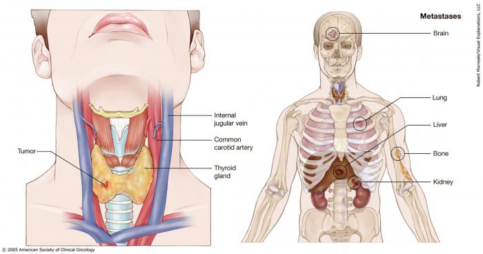 does papillary thyroid cancer spread quickly)