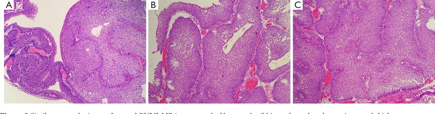 inverted papilloma bladder follow up)