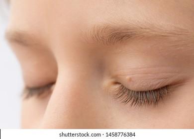 papilloma around eyes)