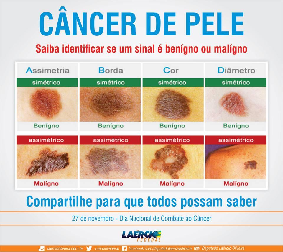 cancer piele benign)