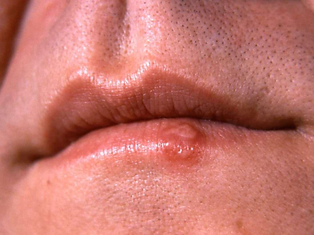 Cancerul buzelor - semne, cauze, tratament - Cancer