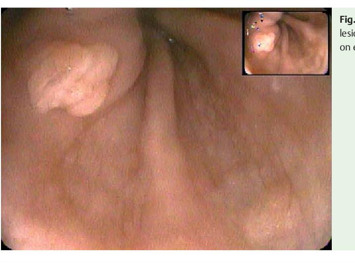squamous papilloma esophagus causes