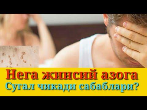 papiloma virusi nima gastric cancer vs gist