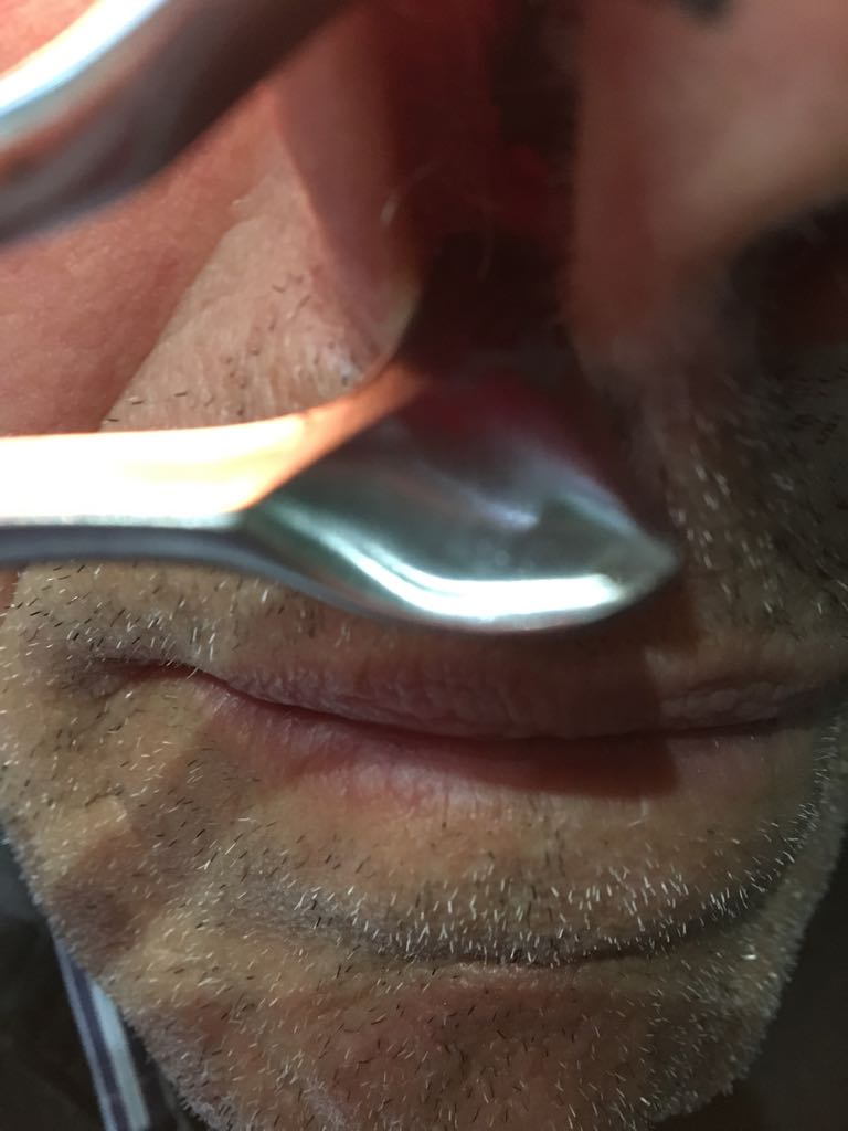 papilloma virus bocca diagnosi)