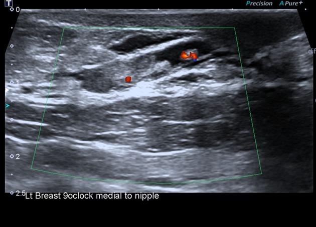 papilloma breast disease)
