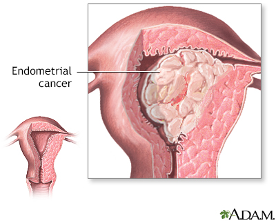 endometrial cancer is hpv virus and lower back pain