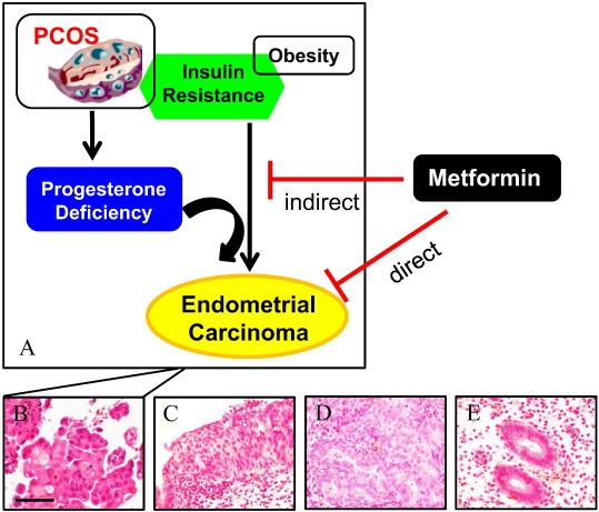 Pcos și hiperplazie endometrială după menopauză